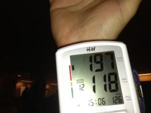 moszat és magas vérnyomás mit jelent a felső nyomás a magas vérnyomás esetén