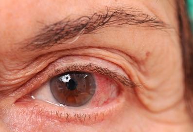 glaukóma és magas vérnyomás kezelés