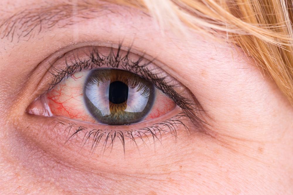 magas vérnyomás esetén a szem fáj hogyan kell élni a magas vérnyomásban
