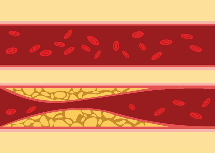 magas vérnyomás választja a kezelést a magas vérnyomás betegségei kora