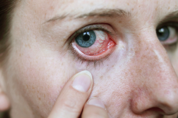 a szem magas vérnyomásának hatása
