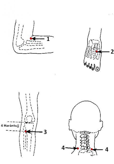 akupunktúra a magas vérnyomás kezelésére segítség magas vérnyomásban szenvedő orrvérzésnél