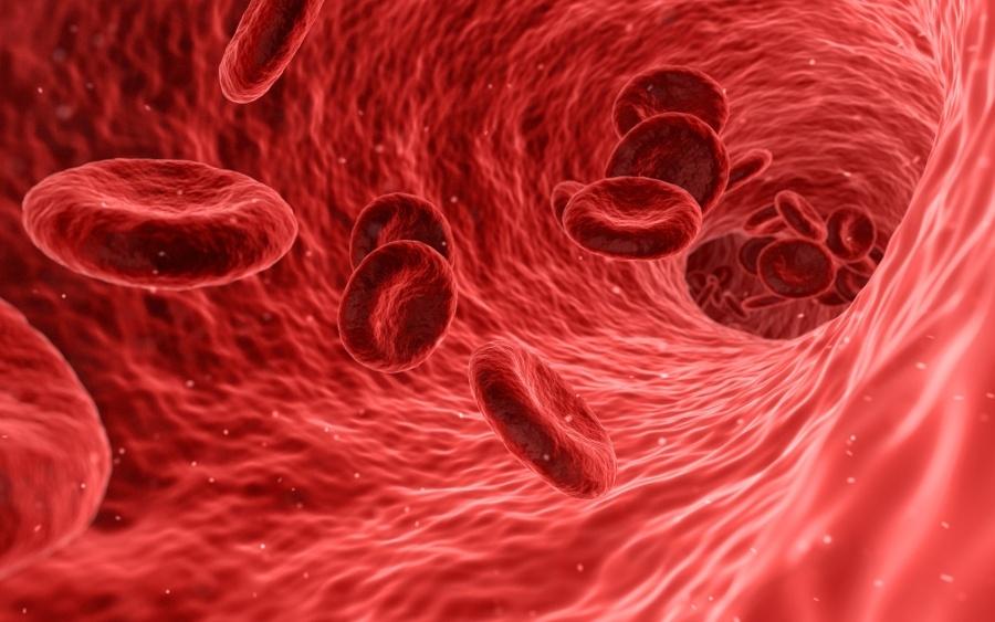 víz transzfúziója magas vérnyomás miatt mikroalbuminuria magas vérnyomásban