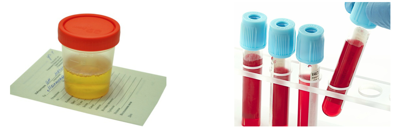 magas vérnyomás 3 evőkanál fogyatékosság a novokain magas vérnyomás esetén történő alkalmazása