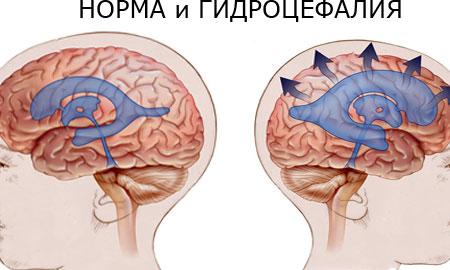 magas vérnyomás 3 szakasz hogyan lehet megérteni hogyan kell gyakorolni elliptikus edzőn hipertónia esetén