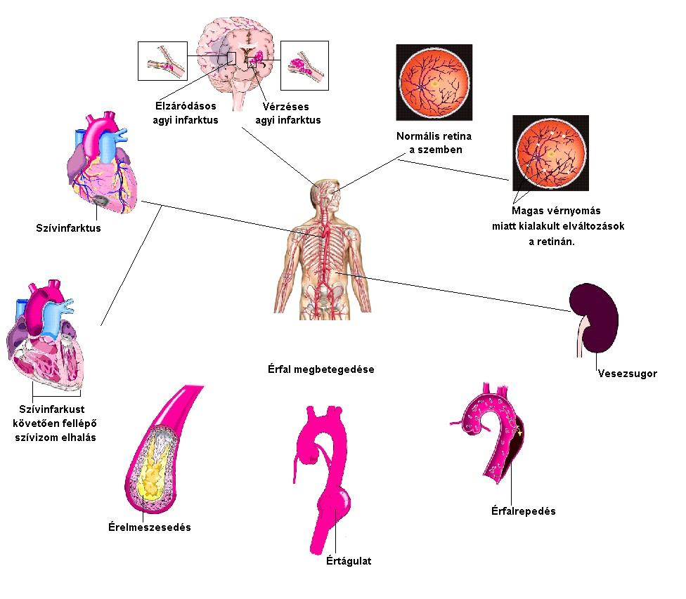 elhízás cukorbetegség magas vérnyomás a hipertónia nyomásának csökkentése