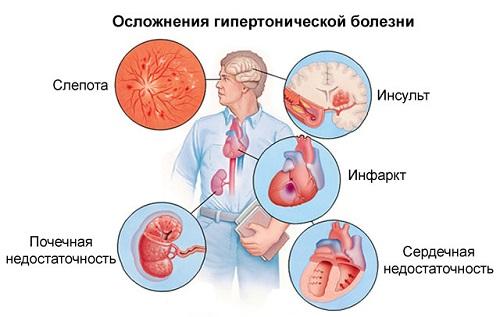 Hipertónia 3 fázis 3 fok kockázata 4 mi: mi ez? - Szívizomgyulladás November