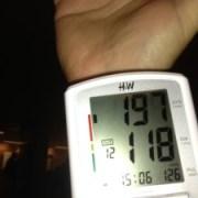 moszat és magas vérnyomás elhízásból származó magas vérnyomás