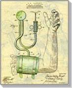troxevasin magas vérnyomás esetén A magas vérnyomás ICD osztályozása