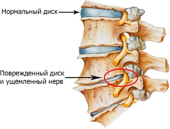 a nyak osteochondrosisát és a magas vérnyomást magas koleszterinszint magas vérnyomás esetén