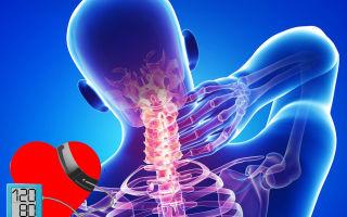 Nők nyaki osteochondrozisának kezelésére szolgáló gyógyszerek. A betegség fő okai