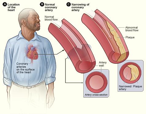 magas vérnyomás elleni gyógyszerek koleszterinre