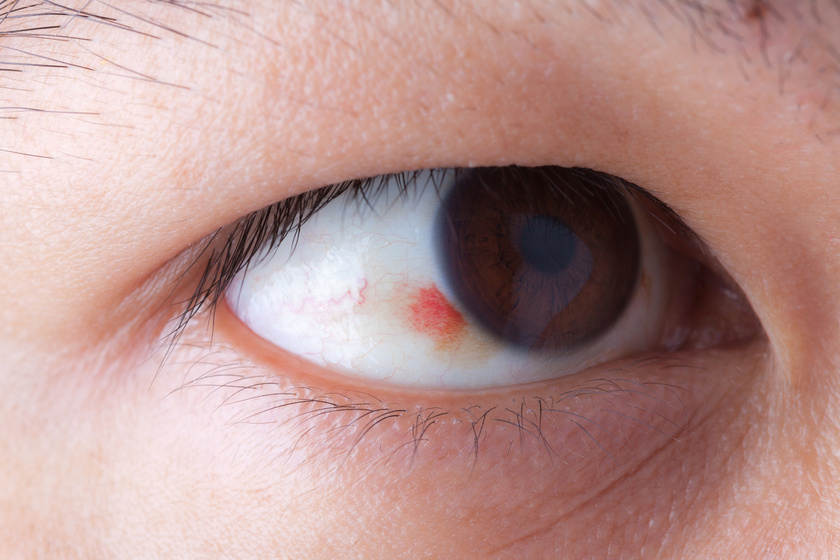 fájó szemek magas vérnyomás