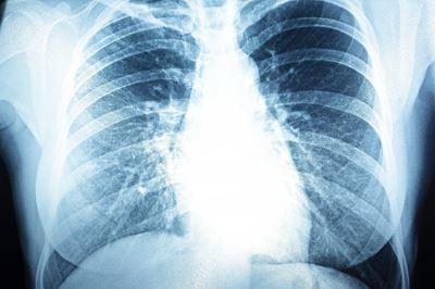 hogyan és hogyan kell kezelni a pulmonalis hipertóniát magas vérnyomás kemoterápiával