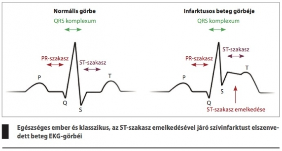 magas vérnyomás szakasz fokú kockázata gátlások és magas vérnyomás