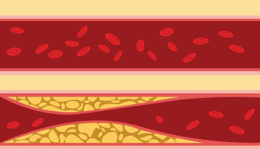 ricardo magas vérnyomású gyógyszer használati útmutatója keményítő magas vérnyomásból