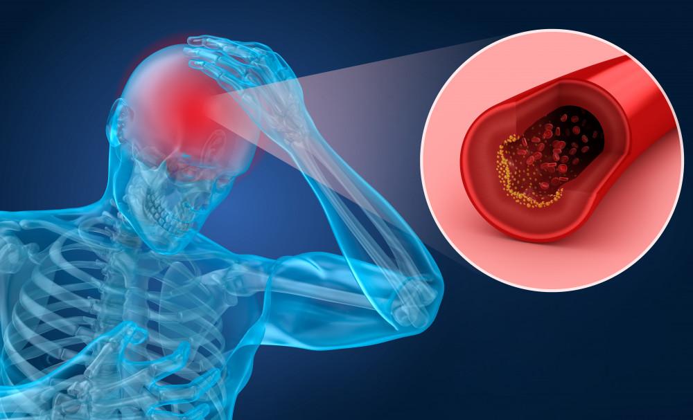 stroke utáni magas vérnyomás mit vizsgáljon magas vérnyomás esetén