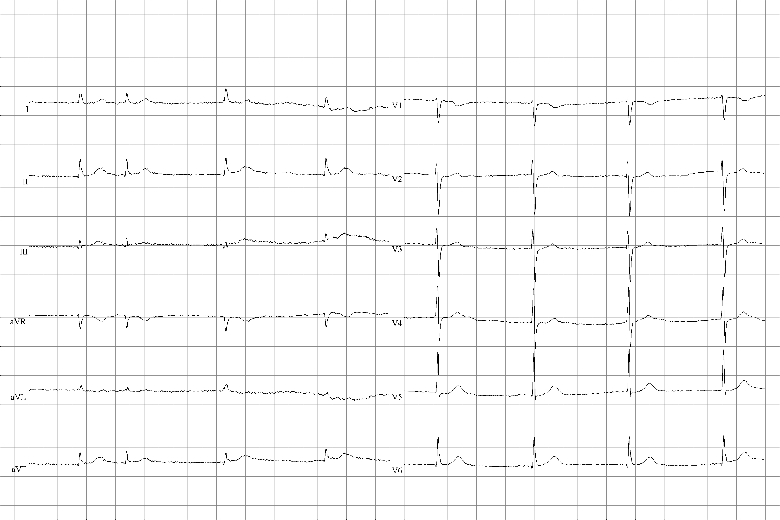 tachycardia tünetei alacsony vérnyomás hipertóniával hogyan lehet növelni